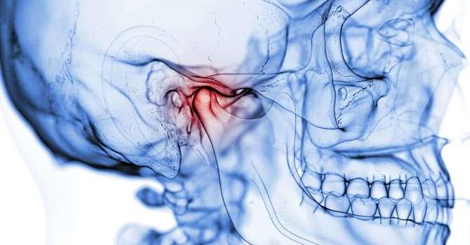 Temporomandibular Disorder (TMD) Jaw Pain image