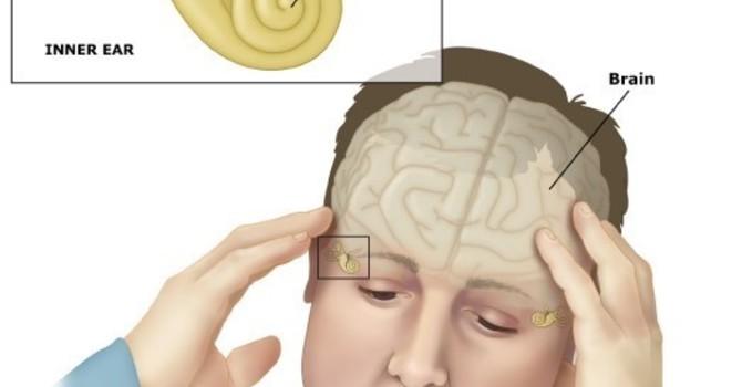 Vestibular Rehab image
